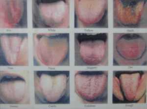 condiciones-de-la-lengua.jpg?w=300&h=225
